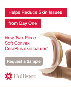 Hollister-Two-Piece-Soft-Convex-CeraPlus-Skin-Barrier